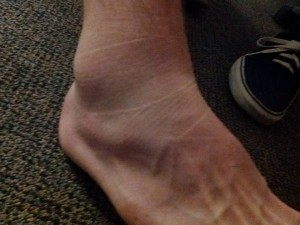 Anthony Ajlouny&#039;s sprained ankle